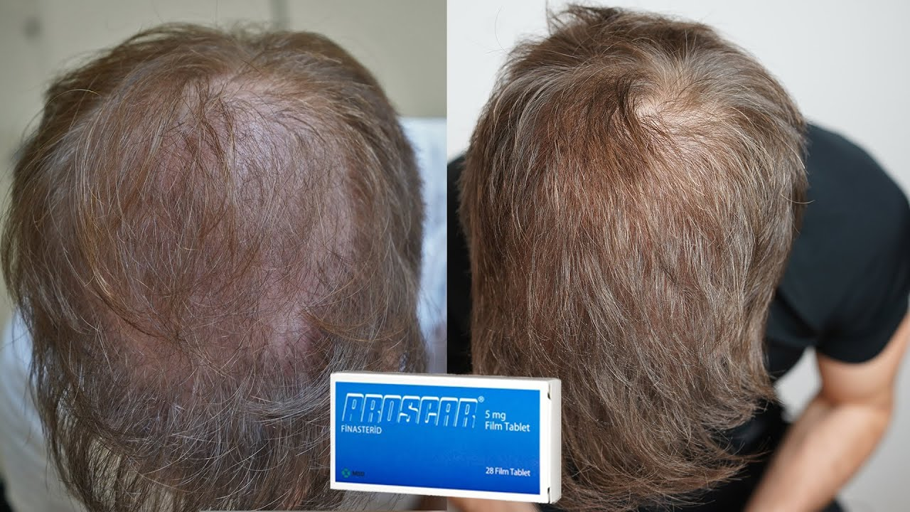 My Finasteride Results After 1 Year Youtube