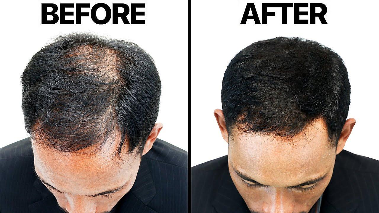 Finasteride (Propecia) For Hair Loss
