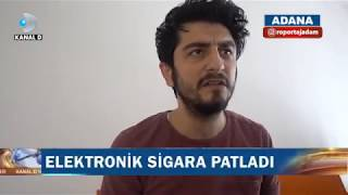 E-Sigara Patlayınca Sis Bombası Atıldı Sanan Adam - Röportaj Adam #7