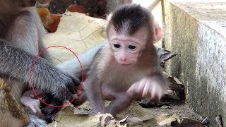 Acheb Save Orphan Jessie! Adorable Jessie break on eyebrow cos fighting of monkey