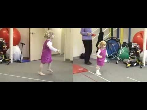 Before & After: Excessive Plantarflexion - Toe Walking | DAFO 2
