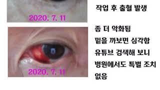 안구출혈 볼자석침 치료 사례 안구충혈 안구건조증