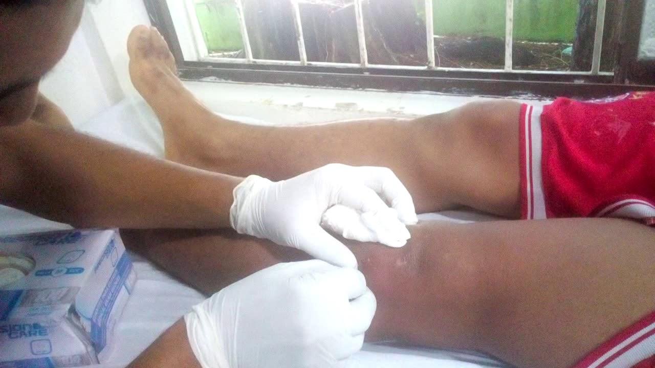 drenaje de pus en la pierna