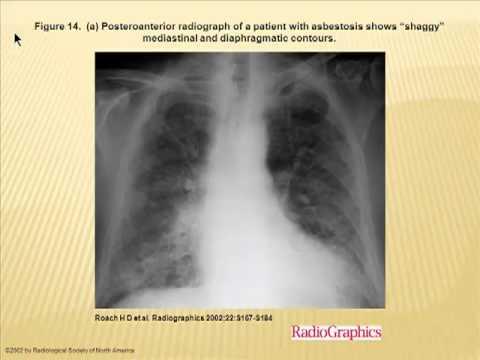 Internal Medicine Grand Rounds:  Occupational Lung Disease