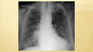 Internal Medicine Grand Rounds:  Occupational Lung Disease