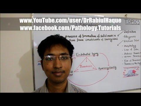 Thrombosis : Definition, Pathogenesis, Morphology & Fate (HD)