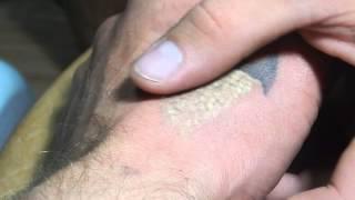 Удаление татуировки. Лазер YAG-V9