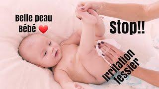 STOP À L'IRRITATION FESSIER /BÉBÉ AU T❤P