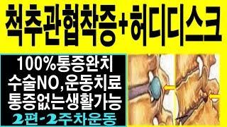 척추관협착증 허리디스크 완치운동 2편 통증해결! [머슬…