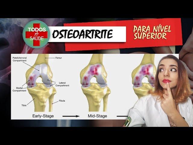 OSTEOARTRITE PARA NÍVEL SUPERIOR