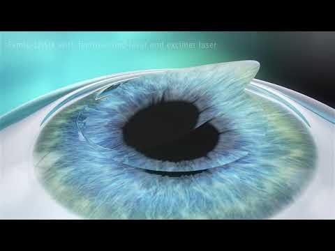 lasik-eye-surgery-vision-correction-dr-david-kent-fendalton-eye-clinic-christchurch