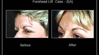 Forehead Lift Toronto Thumbnail