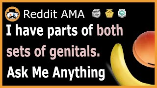 I have parts of both sets of private parts (Intersex). (Reddit Ask Me Anything)