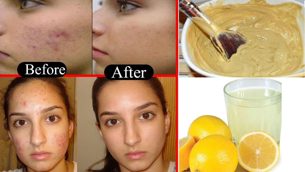 Get rid of spots on face overnight