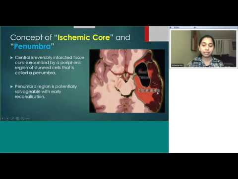 Radiology teaching on Topic: Acute Stroke Imaging by Dr Zarina Aziz