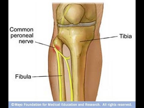 Common fibular nerve injury - Injury to lateral aspect of the leg at ...