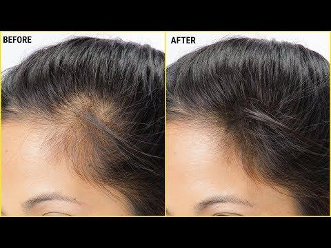 How To Make Vitamin E Hair  Oil To Regrow Hair Fast/Control Hair Fall