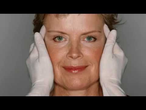 Face Lifts | Russo Aesthetic and Wellness – Fairfield, CT