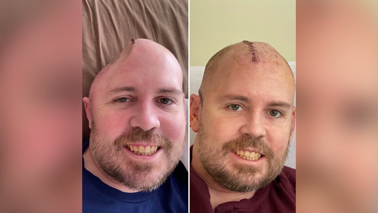 Help Support Rob Holloway, a Carrollton Police Officer, that suffered a massive injury to his head.