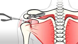 Regenexx Rotator Cuff - Stem Cell Procedure for Rotator Cuff Tears