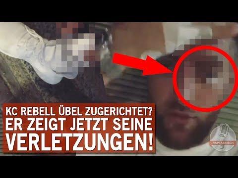 KC Rebell übel zugerichtet!? | Er zeigt seine Verletzungen!