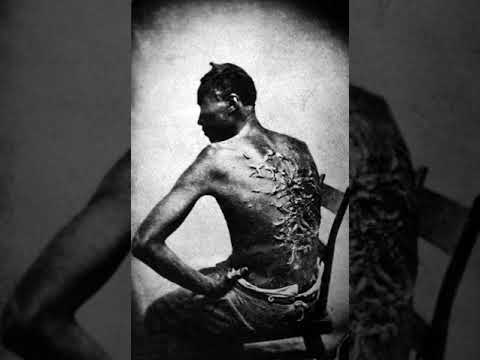 Treatment of slaves in the United States | Wikipedia audio article
