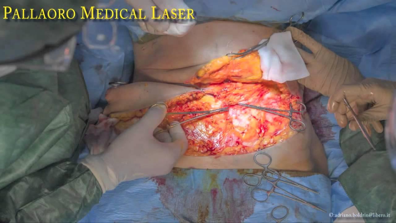 Sintomi di uninfiammazione di posizione di vene profonda