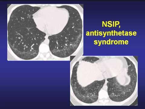 13 - ILD in Collagen Vascular Diseases.mp4 thumbnail