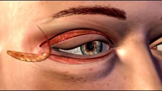 Cosmetic Eye and Eyelid Surgery - 3D Medical Animation    ABP ©