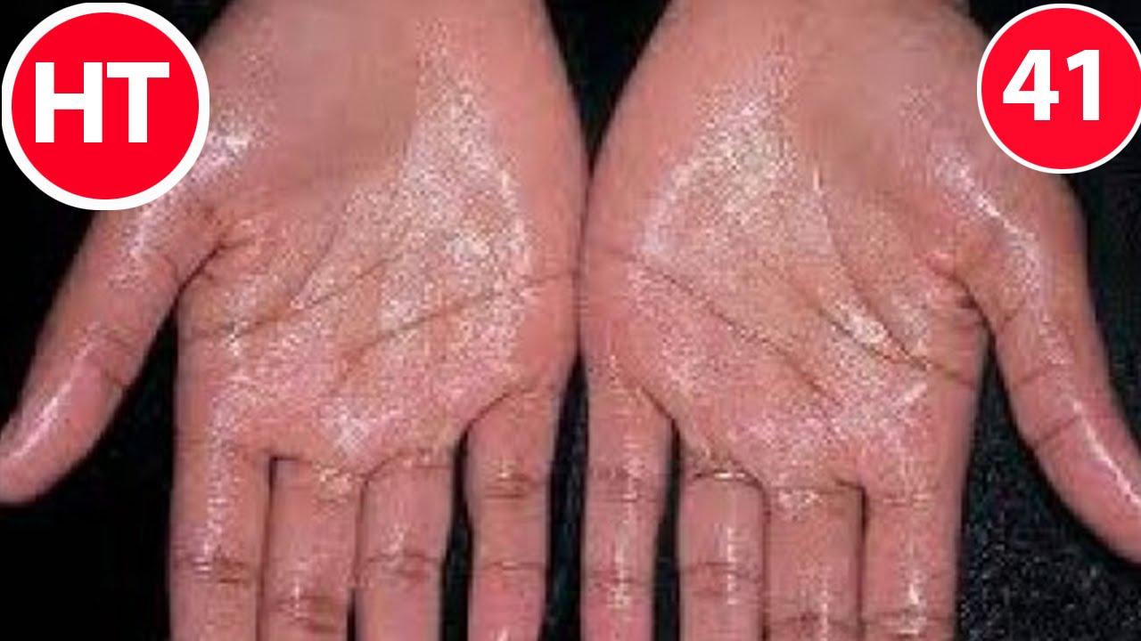 Mẹo chữa dứt điểm bệnh mồ hôi tay | Chữa mồ hôi tay hiệu quả | Mẹo vặt chữa bệnh