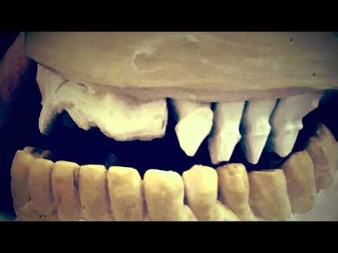Mardentprosthetics dental laboratory. Cadcam