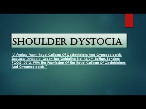 RCOG Guideline Shoulder Dystocia No. 42