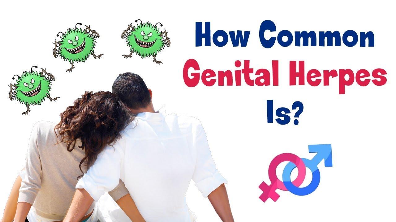 Herpes mann genital Genital herpes