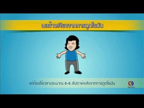 ย้อนหลัง Health Me Please | ดูดไขมัน ตอนที่ 2 | 01-08-60 | Ch3Thailand