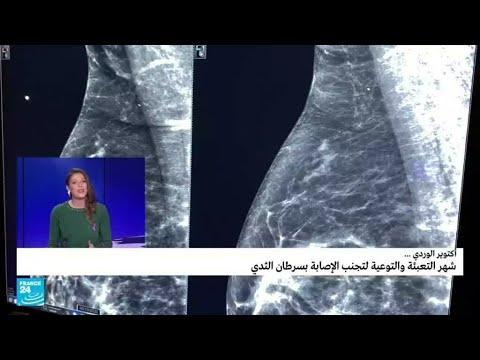 -أكتوبر الوردي-.. شهر التعبئة والتوعية لتجنب الإصابة بسرطان الثدي  - 09:55-2021 / 10 / 19