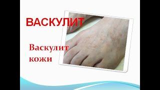 Васкулит (ангиит) кожи