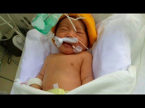 Adiku Samuel Sudah Lahir Mohon Doanya Agar Segera Pulih Yah Ttn Pada Bayi Baru Lahir Youtube