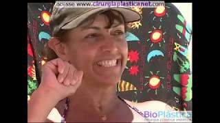 AUMENTO DE GLUTEOS com Bioplastia Gluteos Aumentar Bumbum