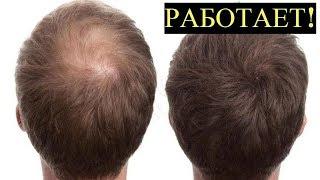 Эффективный Рецепт пасты от Выпадения волос для Мужчин и Женщин