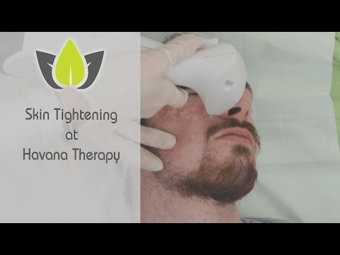 Caroline talks about Skin Tightening Treatment at Havana Therapy