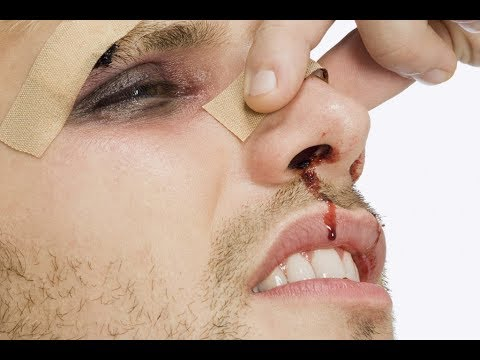 После удара болит нос