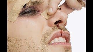 как отличить ушиб носа от перелома? Симптомы. Первая помощь