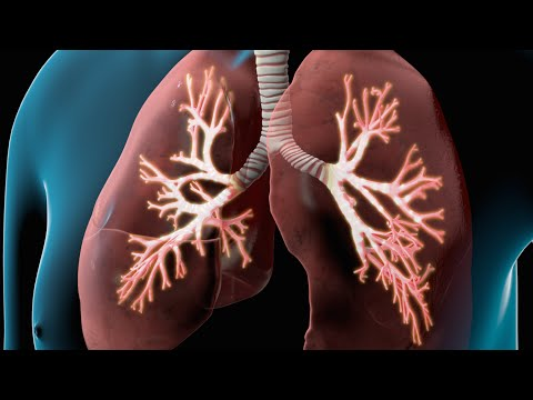 COPD and Diabetes Videos