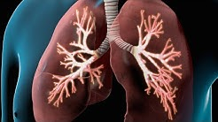 hqdefault - Does Copd Cause Kidney Failure