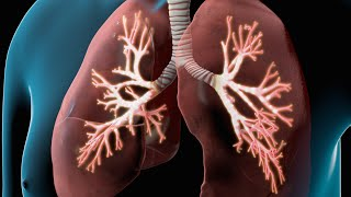 COPD caused by chronic bronchitis and emphysema