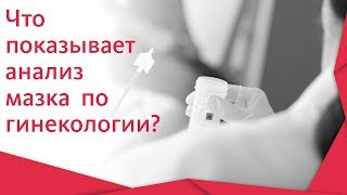 Гинекологический мазок. 🌢 Как проходит взятие гинекологического мазка? Альфа — Центр Здоровья! 12+