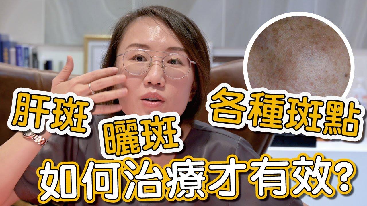 肝斑、色素不均是如何造成?來看看莊盈彥醫師治療肝斑的方式有哪些!