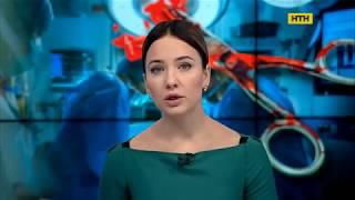 У Миколаєві жінка заколола швацькими ножицями свого чоловіка