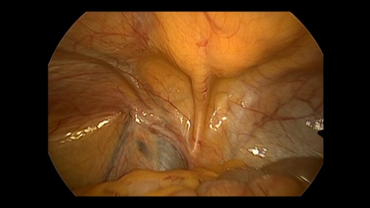 Laparoscopic inguinal anatomy - YouTube