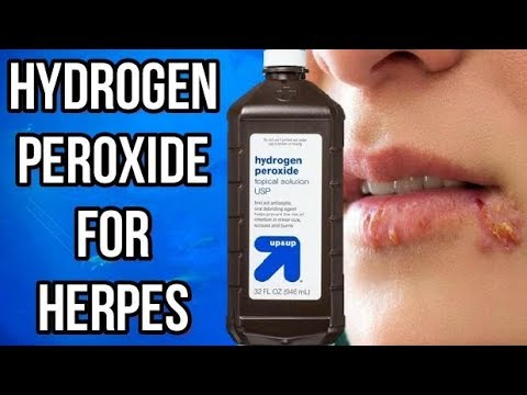 How To EASILY Use HYDROGEN PEROXIDE For HERPES & COLD SORES